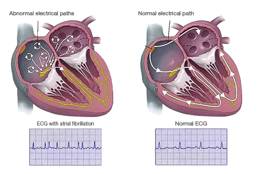 Flinders Cardiac Clinic  - Catheter Ablation for Atrial Fibrillation
