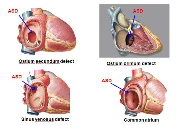 Flinders Cardiac Clinic  - Percutaneous ASD Closure